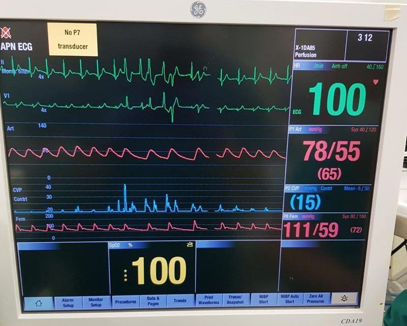 Извршена четвртата трансплантација на срце, органот земен од 44-годишна дарителка